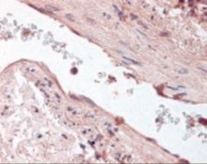 Immunohistochemistry staining of Angiopoietin-1 in lung, vessel tissue using Angiopoietin-1 Antibody.