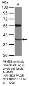 Anti-TUBA3E Rabbit Polyclonal Antibody