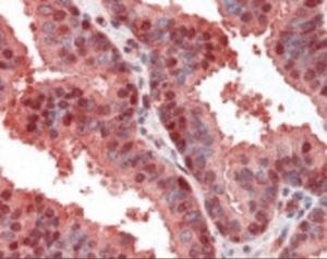 Immunohistochemistry staining of CDKN2A in prostate tissue using CDKN2A Antibody.