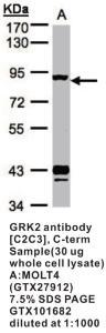 Anti-ADRBK1 Rabbit Polyclonal Antibody