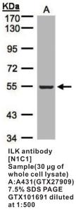 Anti-ILK Rabbit Polyclonal Antibody