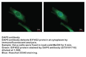 Anti-DAP5 Rabbit Polyclonal Antibody