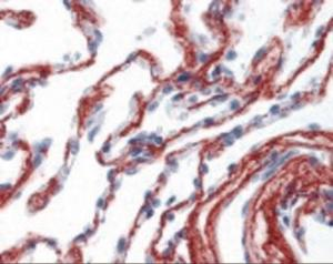 Immunohistochemistry staining of COL6A1 in lung (formalin-fixed paraffin embedded) using COL6A1 Antibody.