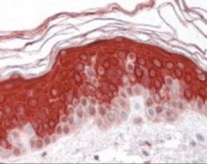 Immunohistochemistry staining of LRP3 in skin tissue using LRP3 Antibody.