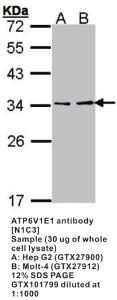 Anti-TBXAS1 Rabbit Polyclonal Antibody