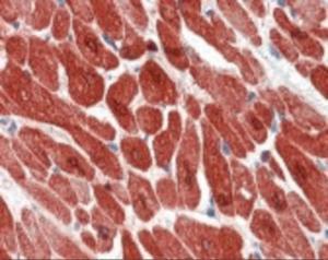 Immunohistochemistry staining of TNNI3 in heart tissue using TNNI3 Monoclonal Antibody.