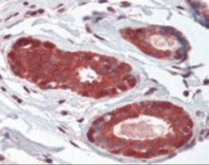 Immunohistochemistry staining of NEDD4 in breast: formlin-fixed paraffin-embedded (ffpe)NEDD4 Antibody.