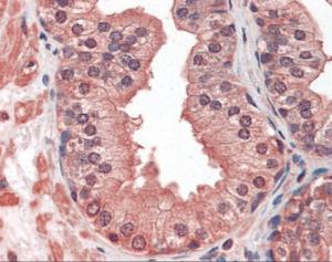 Immunohistochemistry staining of IGF1 Receptor in prostate tissue using IGF1 Receptor monoclonal Antibody.