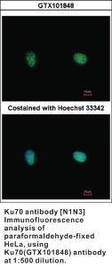 Anti-XRCC6 Rabbit Polyclonal Antibody