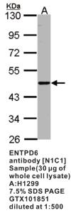 Anti-ENTPD6 Rabbit Polyclonal Antibody