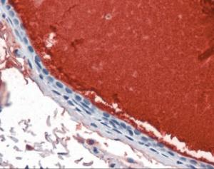 Immunohistochemistry staining of Lactotransferrin in breast, ductal with secretion tissue using Lactotransferrin monoclonal Antibody.