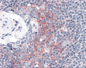 Immunohistochemistry staining of ICAM1 in spleen tissue using ICAM1 monoclonal Antibody.