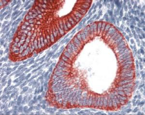 Immunohistochemistry staining of KRT19 in uterus tissue using KRT19 monoclonal Antibody.