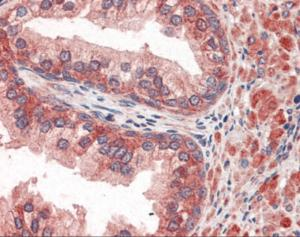 Immunohistochemistry staining of ABCC4 in prostate tissue using ABCC4 Antibody.