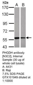 Anti-SORD Rabbit Polyclonal Antibody