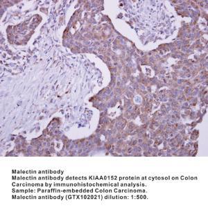 Anti-MLEC Rabbit Polyclonal Antibody