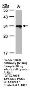 Anti-HLA-DRB4 Rabbit Polyclonal Antibody