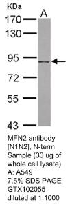 Anti-SLC2A5 Rabbit Polyclonal Antibody