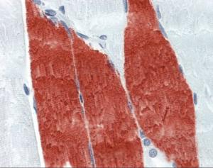 Immunohistochemistry of human skeletal muscle tissue stained using Troponin I Monoclonal Antibody.