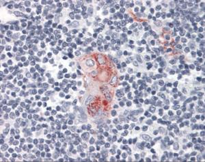 Immunohistochemistry of human thymus tissue stained using CD1D Monoclonal Antibody.