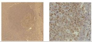 Immunohistochemistry of human tonsil tissue at a 1:1000 dilution of anti-human LMO2 antibody followed by Biotin anti-mouse IgG and HRP-conjugated avidin. Low (left) and high (right) magnifications are shown.