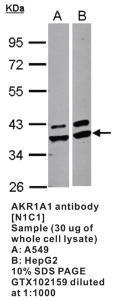 Anti-SERPINA1 Rabbit Polyclonal Antibody