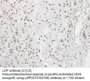 Anti-SERPINA1 Rabbit Polyclonal Antibody