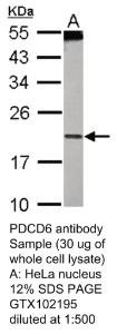Anti-SCYL3 Rabbit Polyclonal Antibody