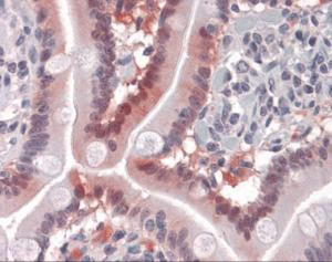 Immunohistochemistry of human small intestine tissue stained using FABP2 Monoclonal Antibody.