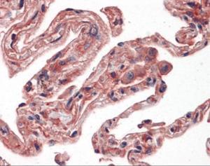 Immunohistochemistry of human lung tissue stained using IRE1 Monoclonal Antibody.