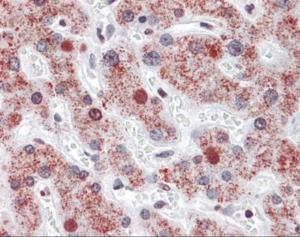 Immunohistochemistry of human liver tissue stained using AGXT Monoclonal Antibody.