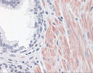 Immunohistochemistry of human prostate tissue stained using ALOX15 Monoclonal Antibody.