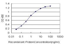 Anti-SGK2 Mouse Monoclonal Antibody [clone: 7C7]