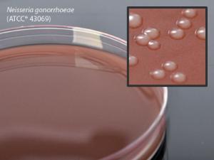 Chocolate Agar, Hardy Diagnostics