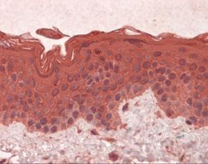 Immunohistochemistry of human skin tissue stained using GNAI1 Monoclonal Antibody.