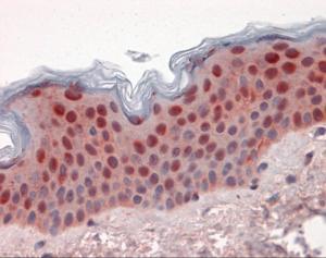 Immunohistochemistry of human skin tissue stained using 14-3-3 Sigma Monoclonal Antibody.