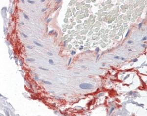 Anti-ROCK2 Mouse Monoclonal Antibody