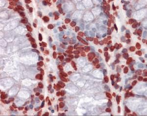 Immunohistochemistry of human colon tissue stained using HIPK1 Monoclonal Antibody.