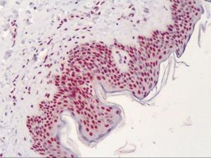 Immunohistochemistry of human skin tissue stained using APE1 Monoclonal Antibody.