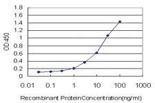 Anti-ZNF263 Mouse Monoclonal Antibody [clone: 1F9]