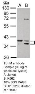 Anti-RPA2 Rabbit Polyclonal Antibody