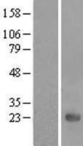 UBE2E3 Overexpression Lysate (Adult Normal), Novus Biologicals (NBL1-17525)