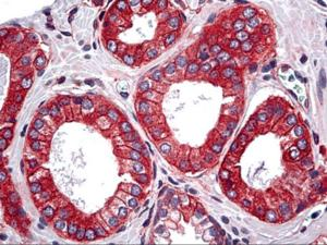 Anti-TRAF3IP2 Mouse Monoclonal Antibody