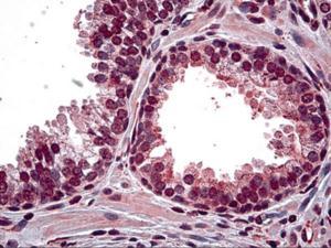 Immunohistochemistry of human prostate tissue stained using HIPK2 Monoclonal Antibody.