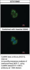 Anti-RARA Rabbit Polyclonal Antibody