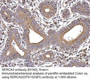 Anti-RAB17 Rabbit Polyclonal Antibody