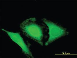 Anti-OPTN Mouse Polyclonal Antibody