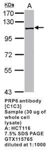 Anti-PRP6 Rabbit Polyclonal Antibody