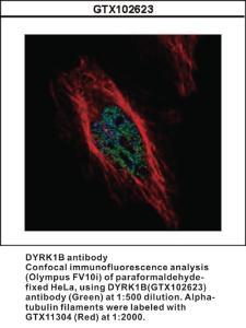 Anti-PRKAR1A Rabbit Polyclonal Antibody