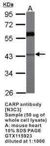 Anti-ANKRD1 Rabbit Polyclonal Antibody